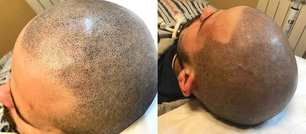 mikropigmentacija kose, mikropigmentacija skalpa, micro hair clinic