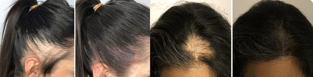 mikropigmentacija kose kod žena, mikropigmentacija skalpa, micro hair clinic