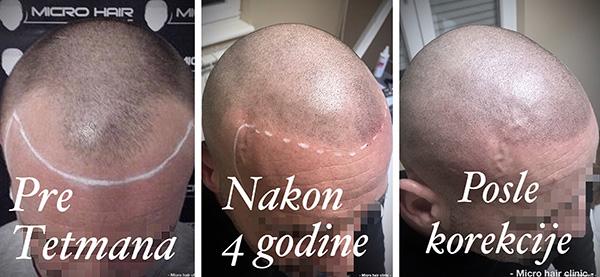 mikropigmentacija kose, mikropigmentacija skalpa