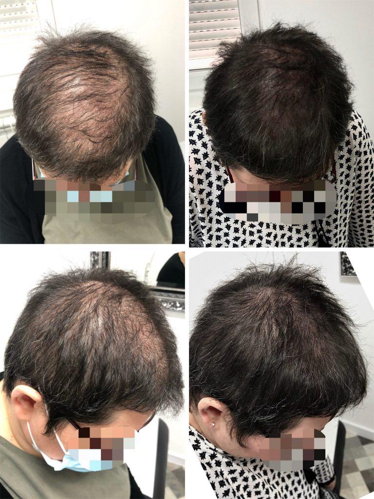 mikropigmentacija kose kod žena, mikropigmentacija skalpa, Micro hair clinic, Beograd