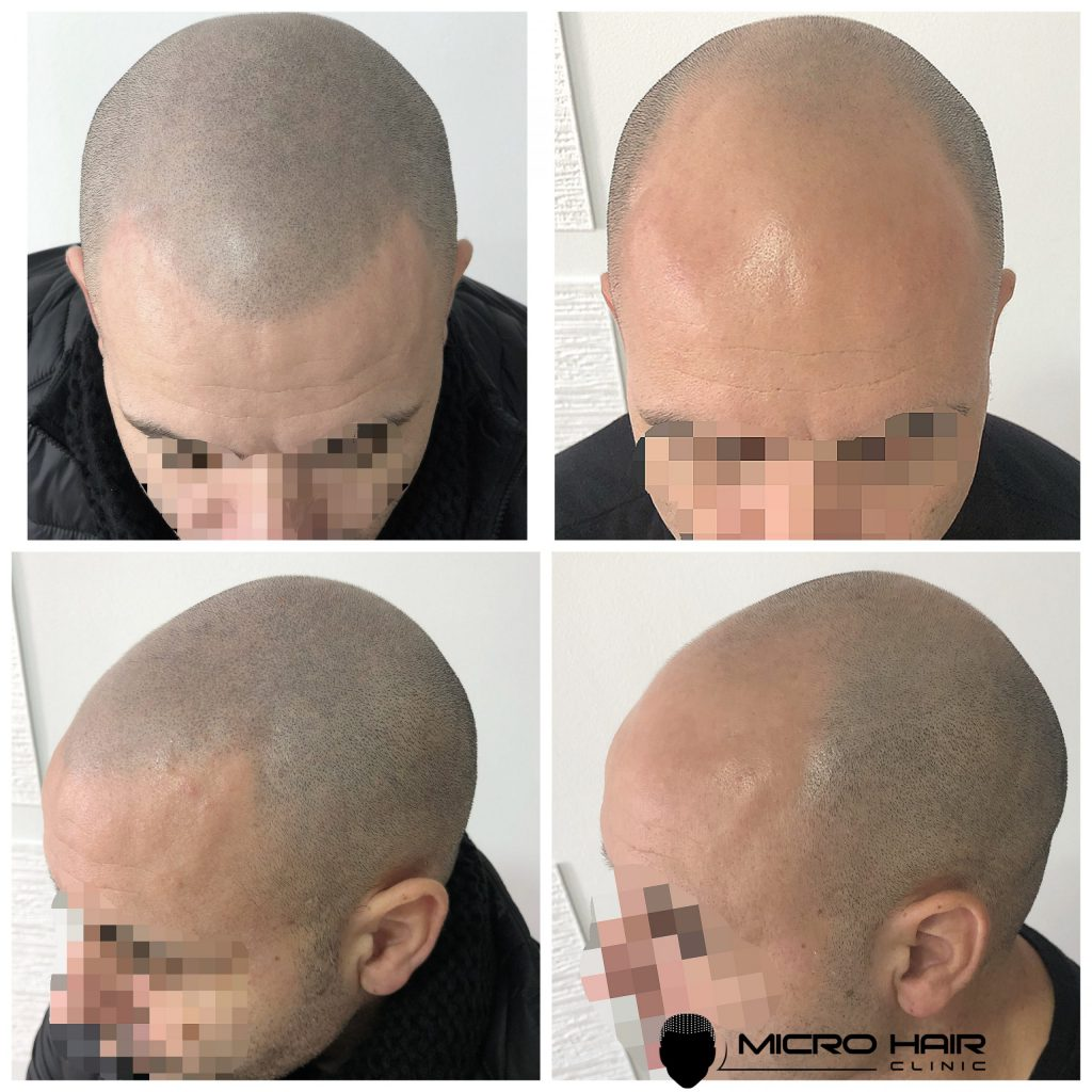 mikropigmentacija kose kod muškaraca, Micro hair clinic