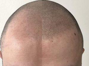 mikropigmentacije kose, mikropigmentacija skalpa, Micro Hair Clinic