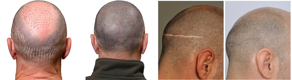 Pokrivanje ožiljaka na glavi micro hair tehnikom slike pre i posle